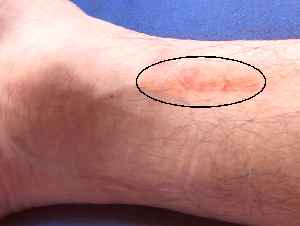 右足首の傷跡